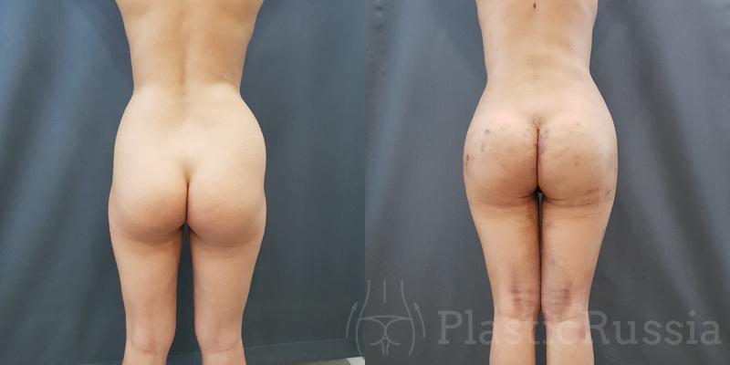 Липофилинг ягодиц. Фото до и после. Пластический хирург Головатинский Владимир Владимирович