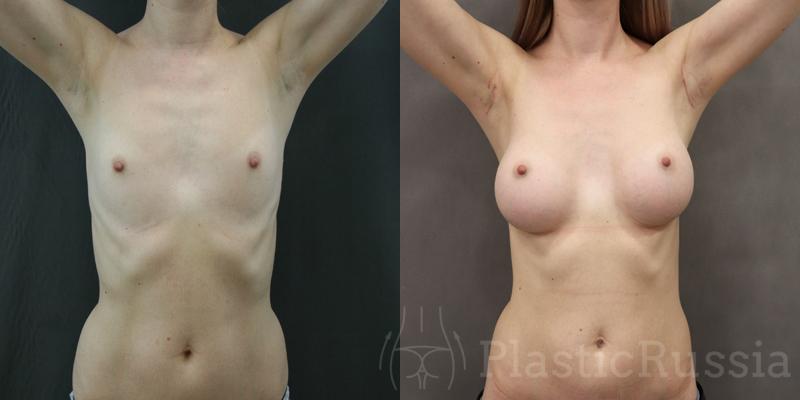 Маммопластика. Фото до и после. Пластический хирург Головатинский Владимир Владимирович