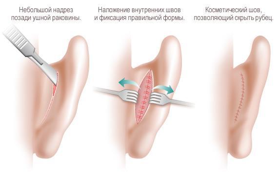 Отопластика (пластика ушных раковин)