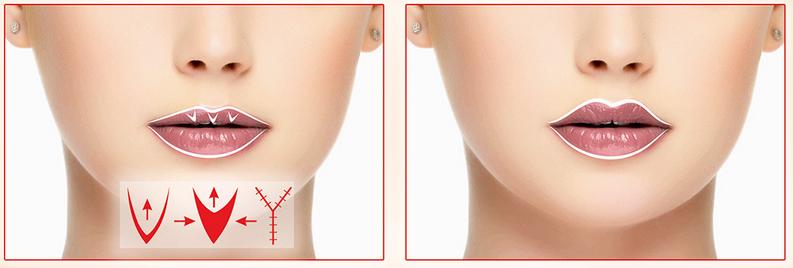 Хейлопластика (коррекция формы губ)