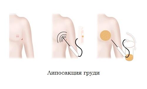Гинекомастия. Лечение