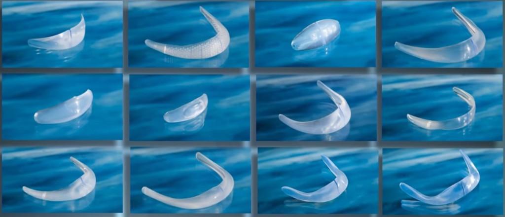 Ментопластика (пластика подбородка)
