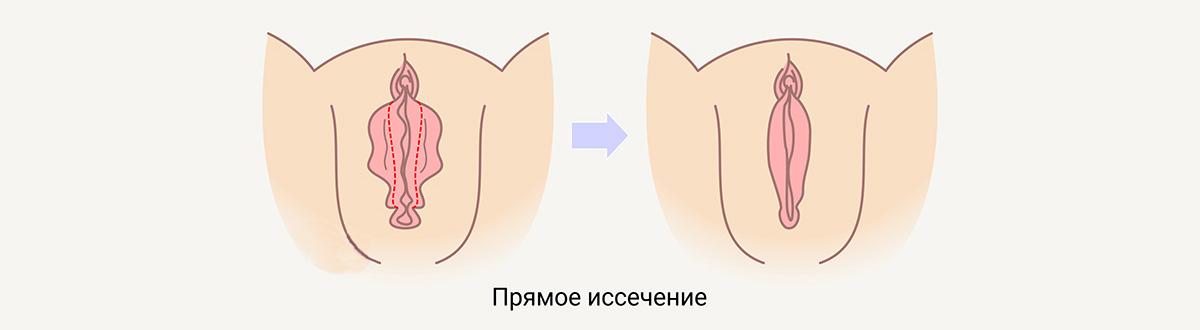 Лабиопластика (уменьшение малых половых губ)