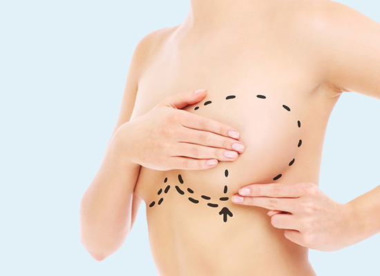 Мастопексия (подтяжка груди)