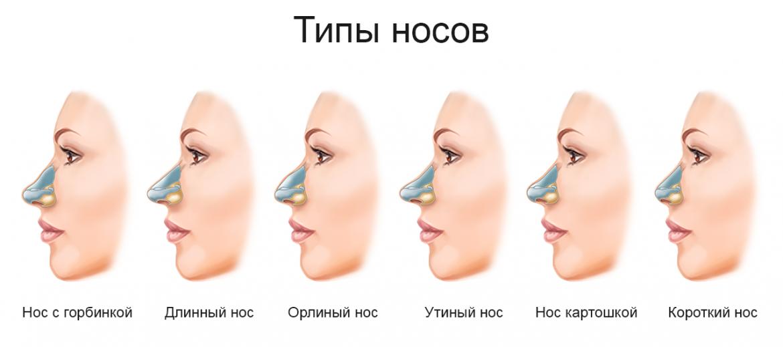 Ринопластика (пластика носа)