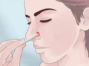 Септопластика (исправление перегородки носа)