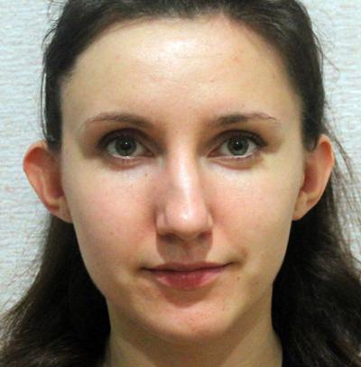 Губин В.Н. - отзыв о пластическом хирурге от пациента Olechka