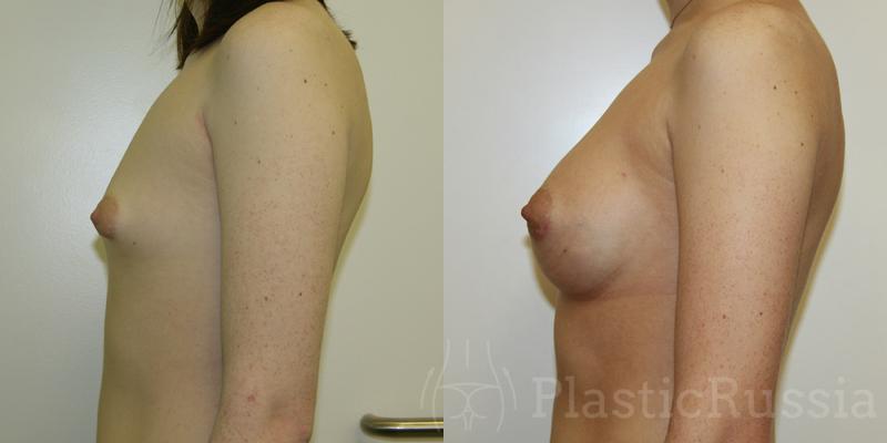 Бага Д.К. Коррекция тубулярной груди