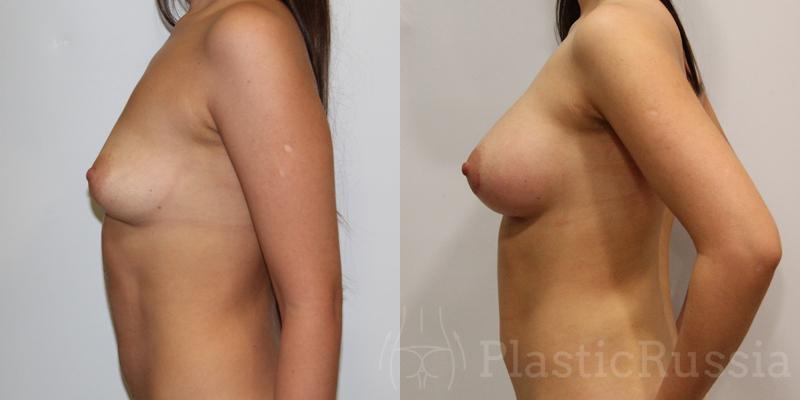 Кораблева Н.П.  Коррекция тубулярной груди