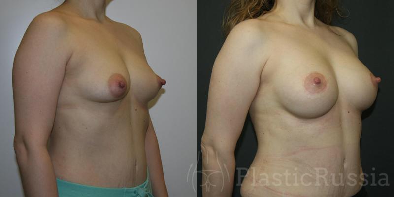 Коррекция тубулярной груди. Фото до и после. Пластический хирург Жолтиков Виталий Владимирович