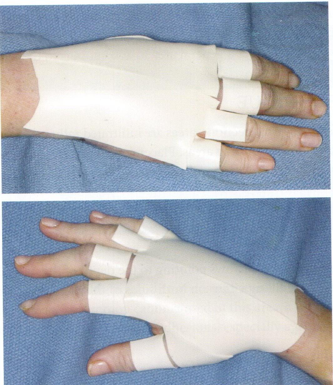 Липофилинг рук
