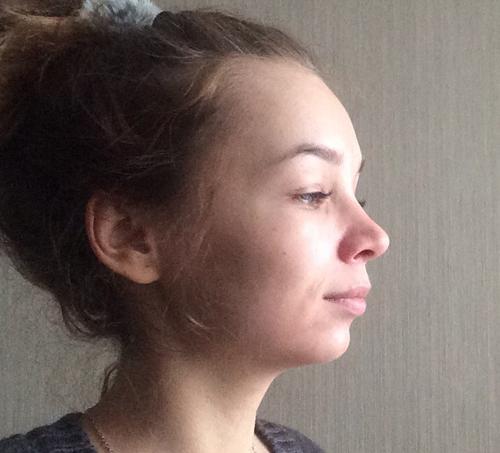 Жолтиков В.В. - отзыв о пластическом хирурге от пациента Лена