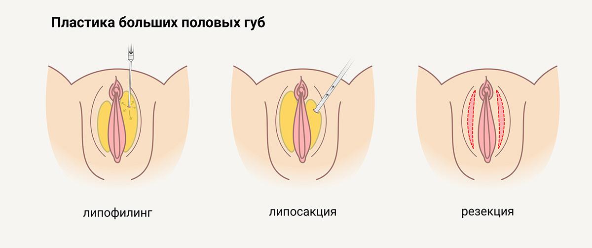 Лабиопластика (пластика больших половых губ)