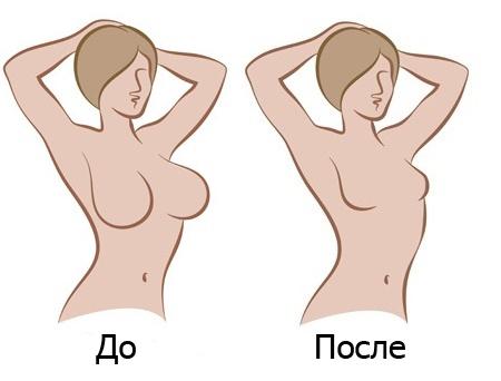 Редукционная маммопластика (уменьшение груди)
