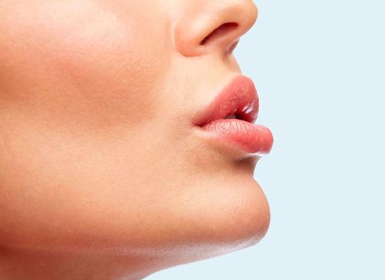 Хейлопластика (пластика губ) - фото работ до и после