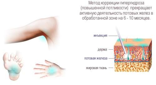 Лечение гипергидроза (повышенной потливости)