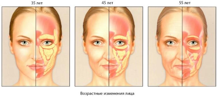 Липофилинг лица