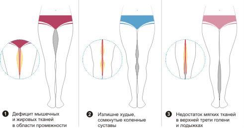 Липофилинг ног