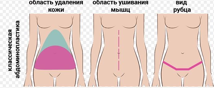 Абдоминопластика (пластика живота)