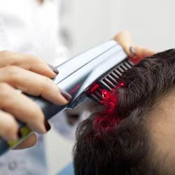 Лазерное лечение волос