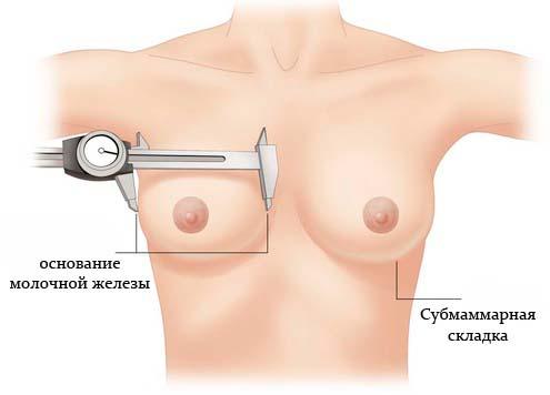 Синмастия или отсутствие межгрудного расстояния