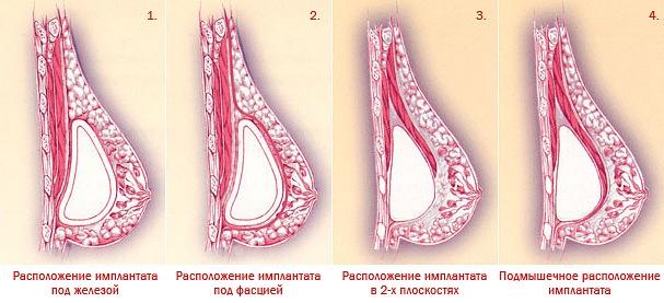 Анимация после маммопластики. Об осложнениях нужно говорить