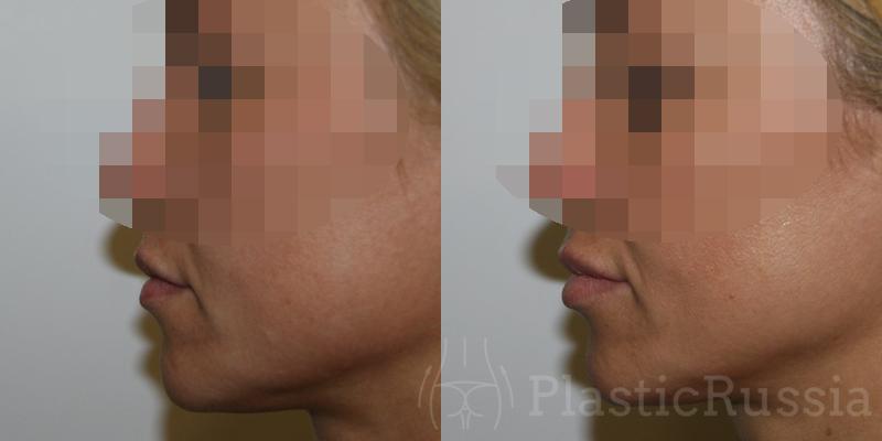 Жолтиков В.В. Липофилинг губ