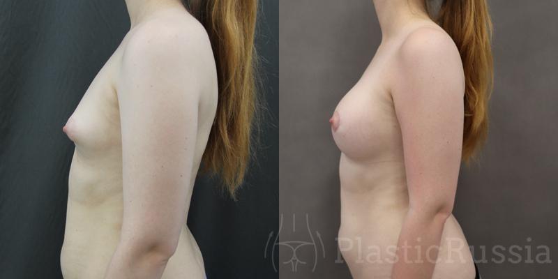 Головатинский В.В. Коррекция тубулярной груди