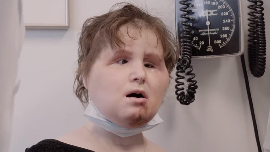 Жительнице США пересадили лицо