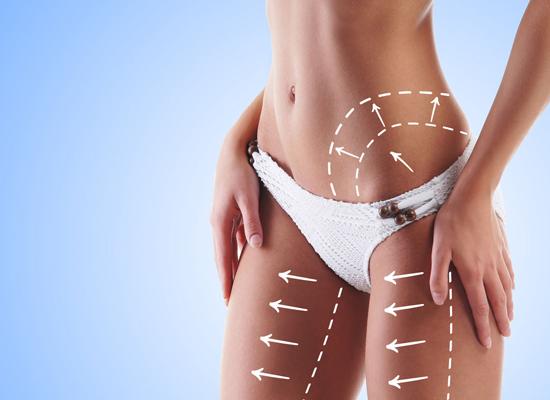 Возвращается ли жир после липосакции?!