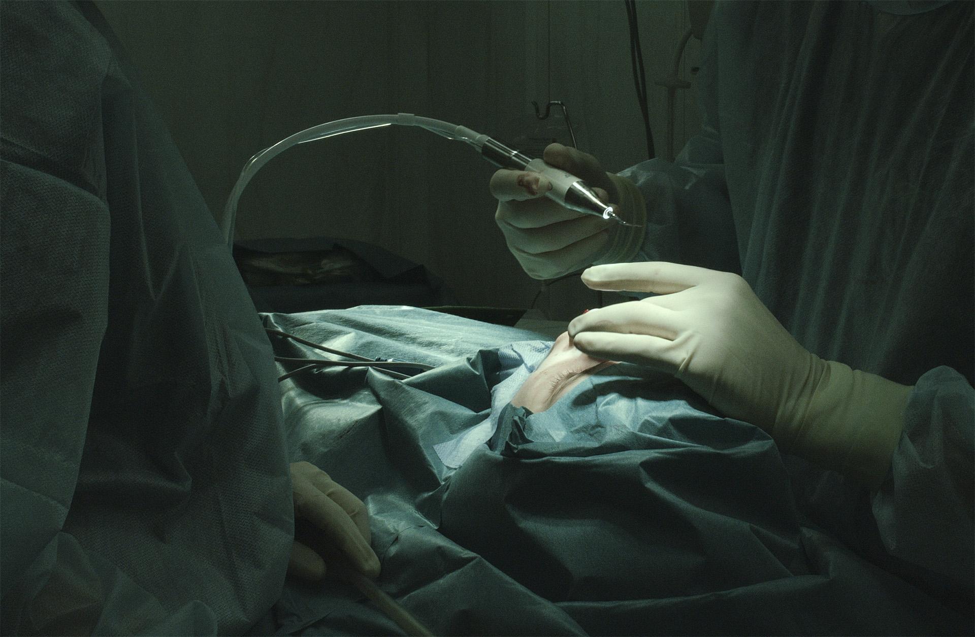 Пьезо-аппарат в ринопластике. Преимущества пьезохирургии