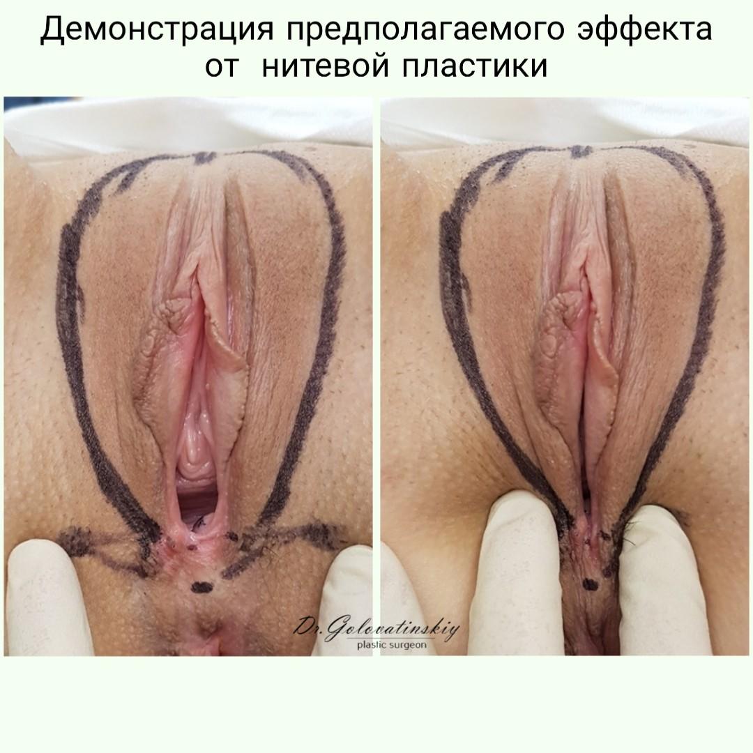 Нитевой лифтинг влагалища, уменьшение входа во влагалище