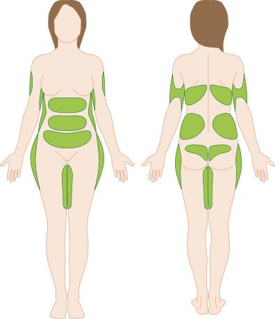 Рассасывается ли весь жир после липофилинга на самом деле!?