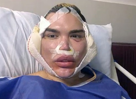 Живой Кен сделал очередную пластическую операцию