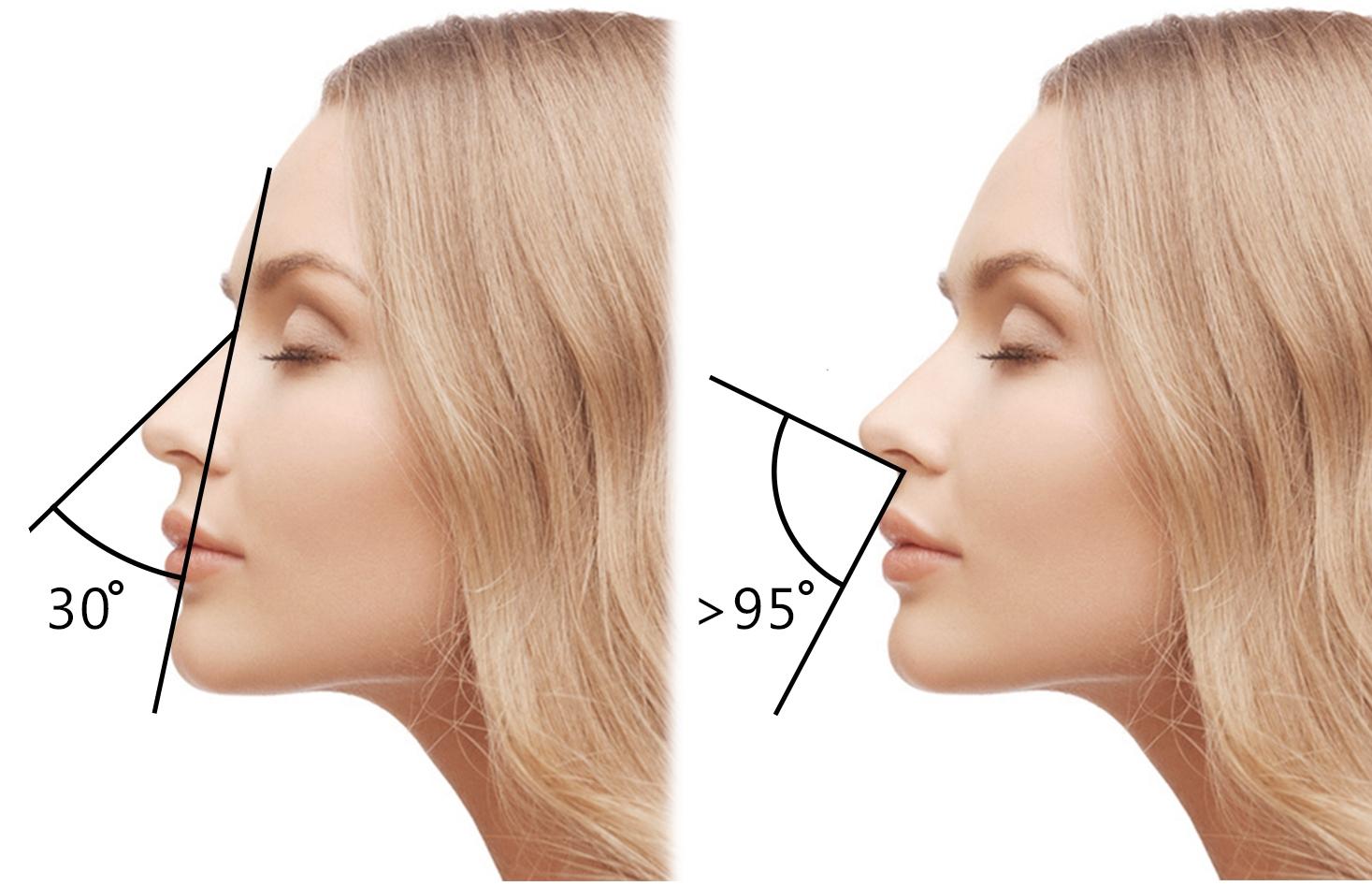 Идеальный профиль - идеальный нос