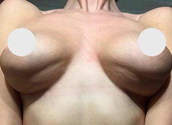 Дабл-Бабл после маммопластики. Эффект водопада или двойная складка, что это такое и как лечить?!