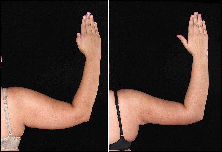 Липосакция рук и ее особенности
