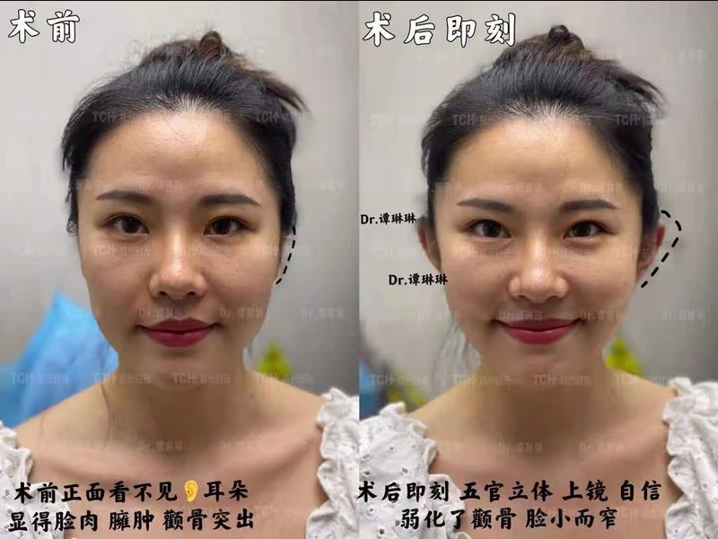 Новая китайская мода - эльфийские уши